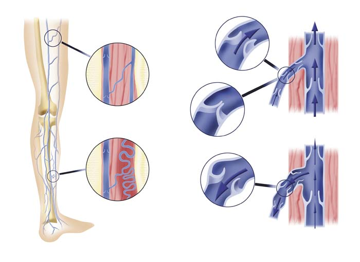 gezeichnetes bein mit vergroesserten venen und arterien